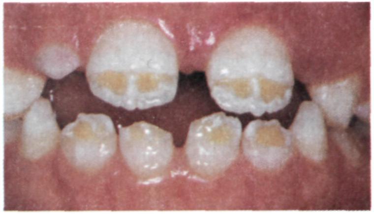Почему темнеет зубная эмаль