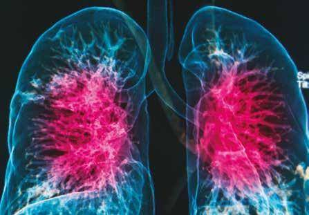 Клинические рекомендации по лечению пневмонии