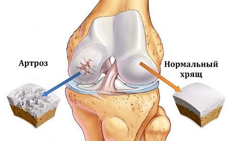 Как питаться при остеоартрозе суставов?
