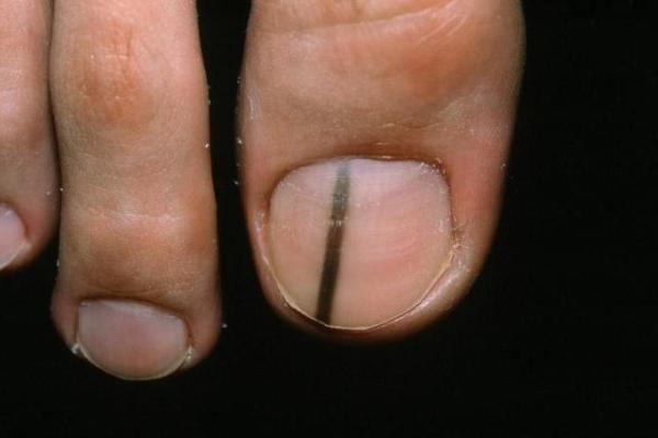 Белая полоска на ногте большого пальца ноги. почему появляются белые полоски на ногтях: лечение. причины появления белых отметин на ногтях