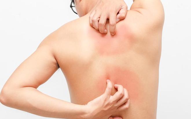 Холестаз – как быстро распознать и лечить все формы болезни?