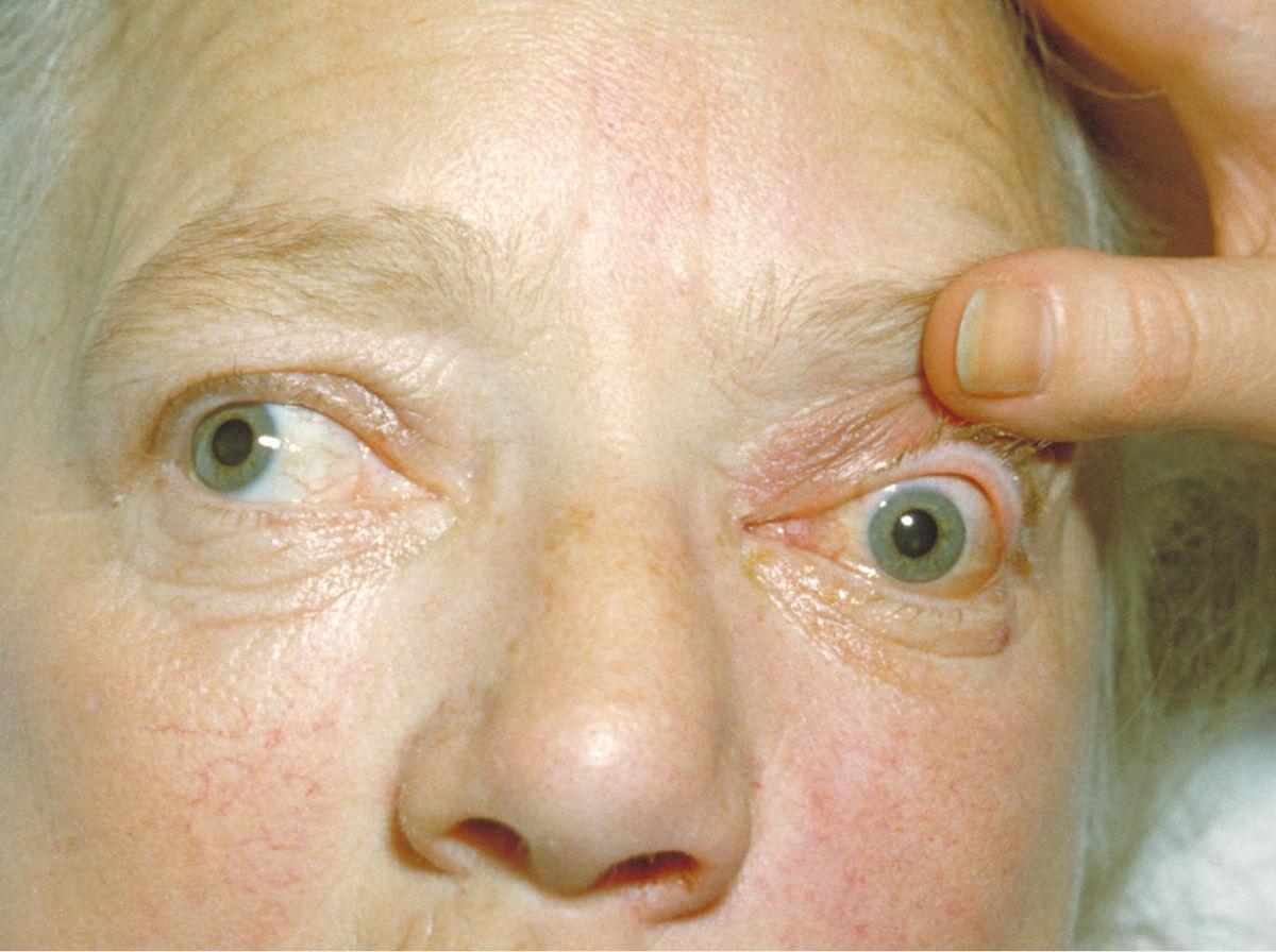 Экзофтальм - описание болезни