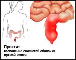 Эрозивный проктит: симптомы и лечение, что это, диета, свечи при эрозивном проктите