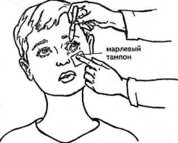 Дефислёз (defislez) инструкция по применению