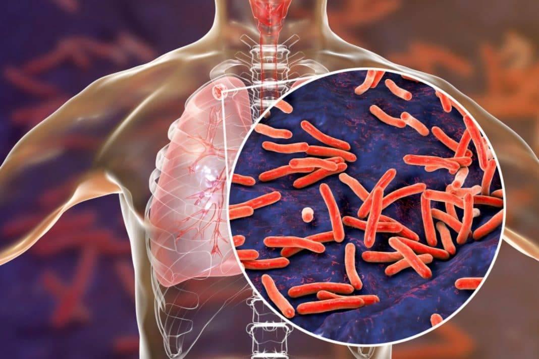 Что такое метатуберкулезные изменения в легких и их лечение