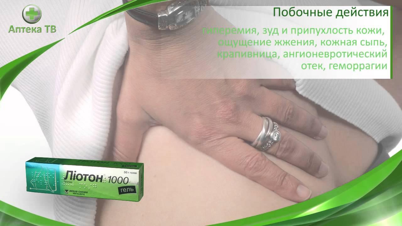 Действие мази лиотон при варикозной болезни