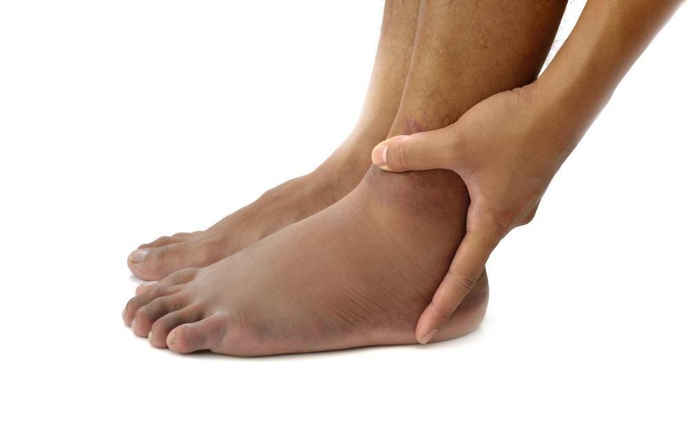 Синяк с шишкой на ноге без ушиба и болит