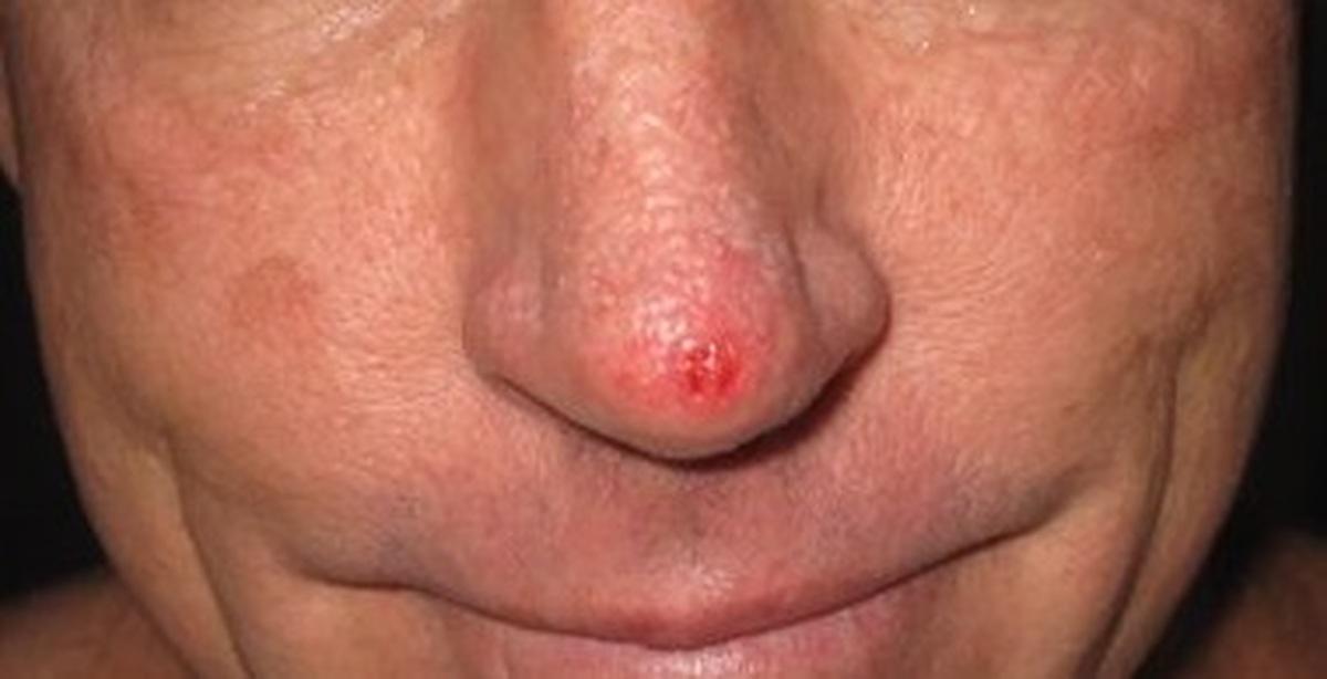 Базалиома кожи носа: виды, причины возникновения, симптомы, диагностика, лечение (облучение, народные средства и пр.) и прогноз выздоровления + фото