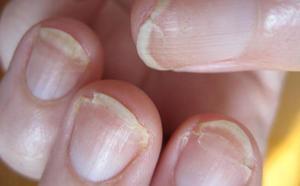Нарушения пигментации кожи, дисхромии (dyschromiae)
