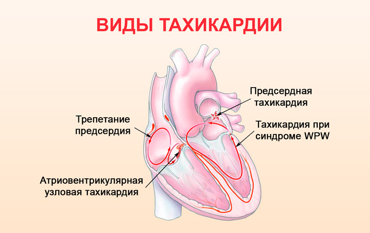 Мерцательная аритмия (фибрилляция предсердий) | симптомы | диагностика | лечение - docdoc.ru