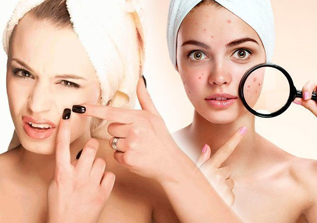Секреты чистой кожи лица: очищение, правильный уход, питание и домашние маски
