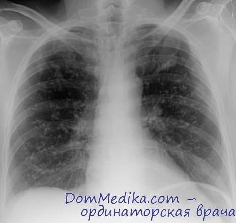 Пневмоцистная пневмония у вич-инфицированных
