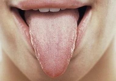 Глоссит – симптомы и лечение