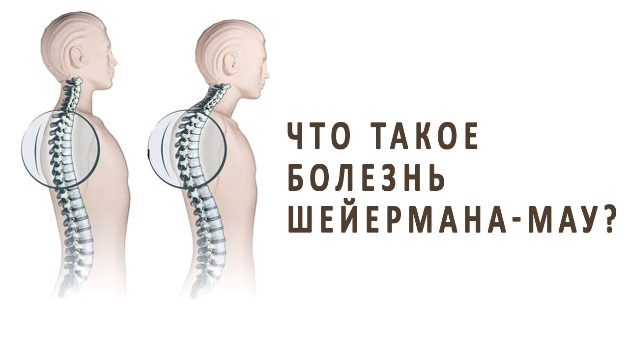 Проявление болезни шейермана-мау и способы ее лечения