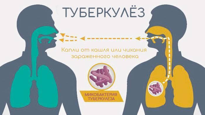 Признаки и лечение туберкулеза у детей и подростков