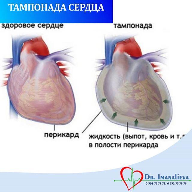 Тампонада сердца – вызов мастерству врача или рутинная операция?