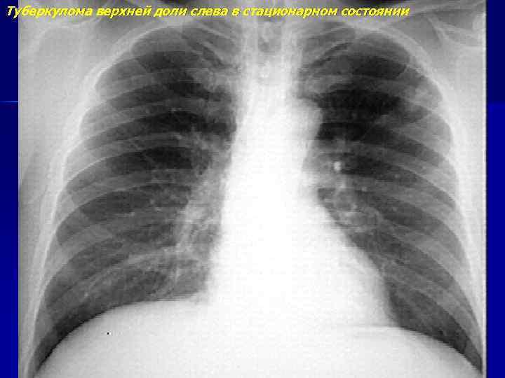 Удаление туберкуломы