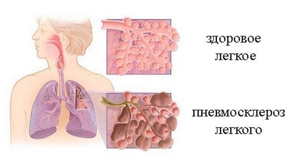 Диффузный пневмосклероз: признаки, симптомы, диагностика и лечение