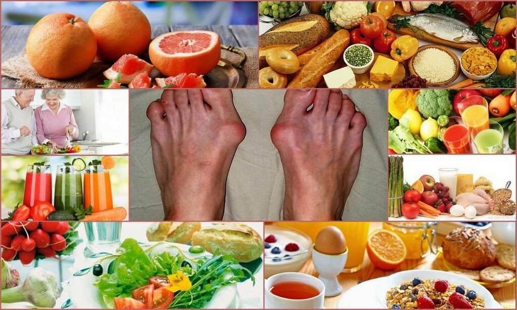При болезни суставов питание