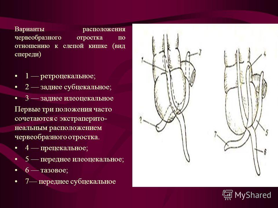 Как лечили аппендицит в давние времена? | | vpalamarchuk.ru