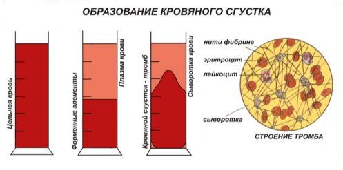 Выход клеток крови из костного мозга. синусоидальное дерево. неэффективность эритропоэза. неэффективный гранулопоэз.
