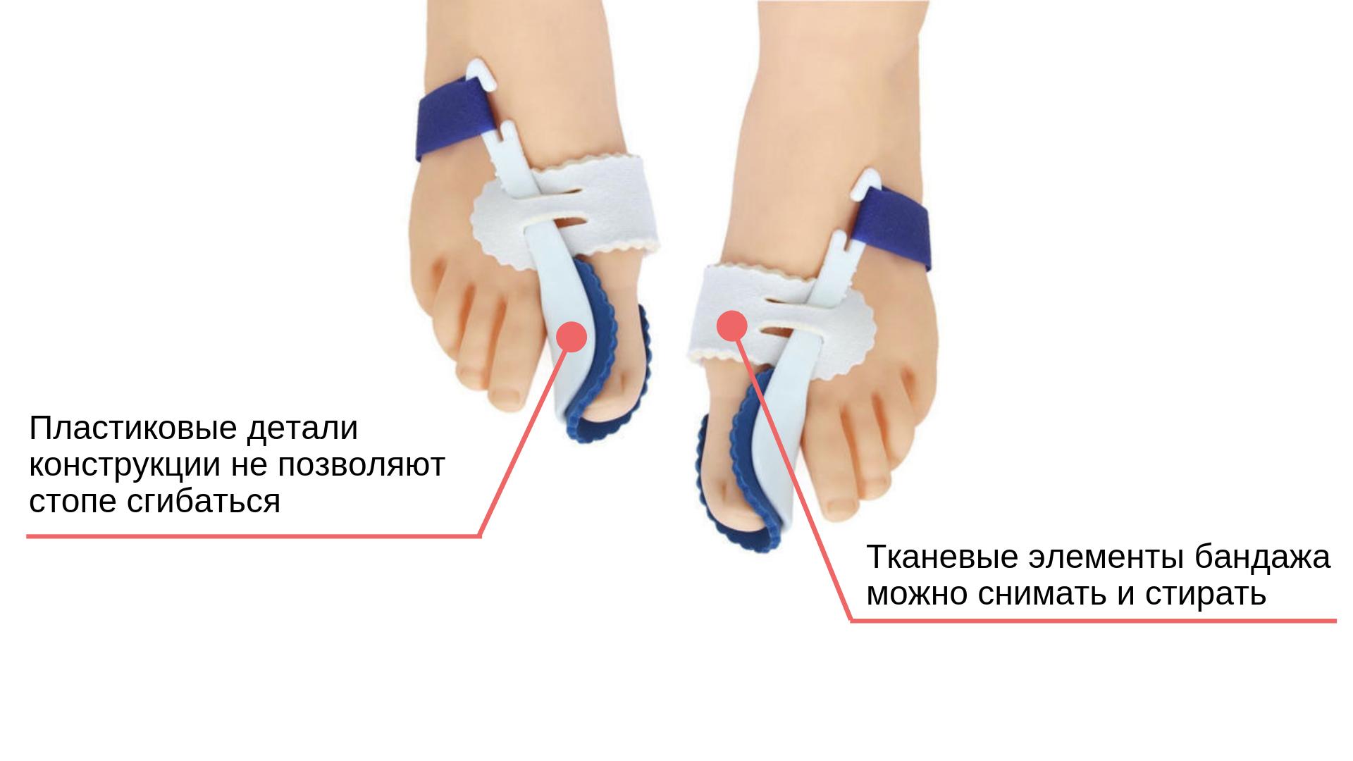 Фиксатор для косточки на ноге – обзор и отзывы
