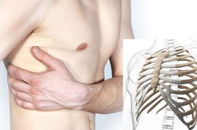 Перелом ребра: причины, симптомы, рекомендации