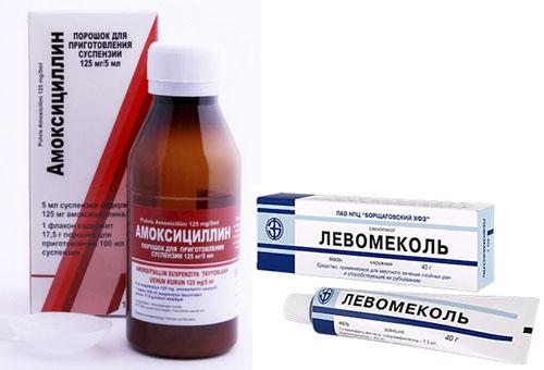 Стрептодермия у детей – лечение в домашних условиях. как выглядит стрептодермия?