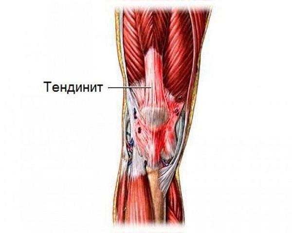 Тендинит (воспаление сухожилий): виды, симптомы, причины, диагностика и лечение