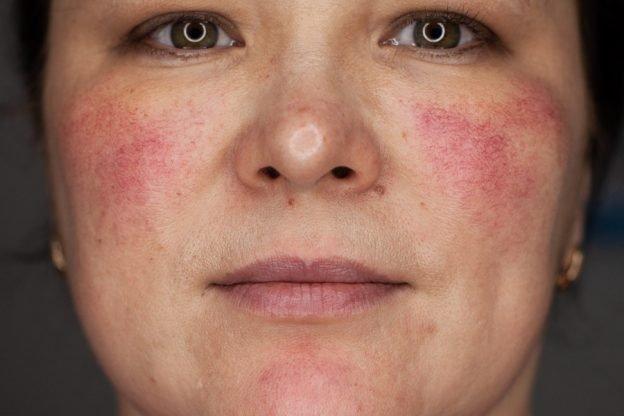 Купероз на лице: лечение