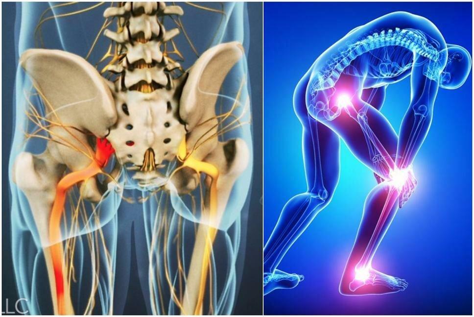 Невралгия тройничного нерва - причины, симптомы, лечение противосудорожными препаратами и народными средствами