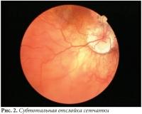 Лечение разрыва сетчатки глаза