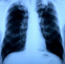 Туберкулез легких – симптомы у взрослых, лечение, осложнения