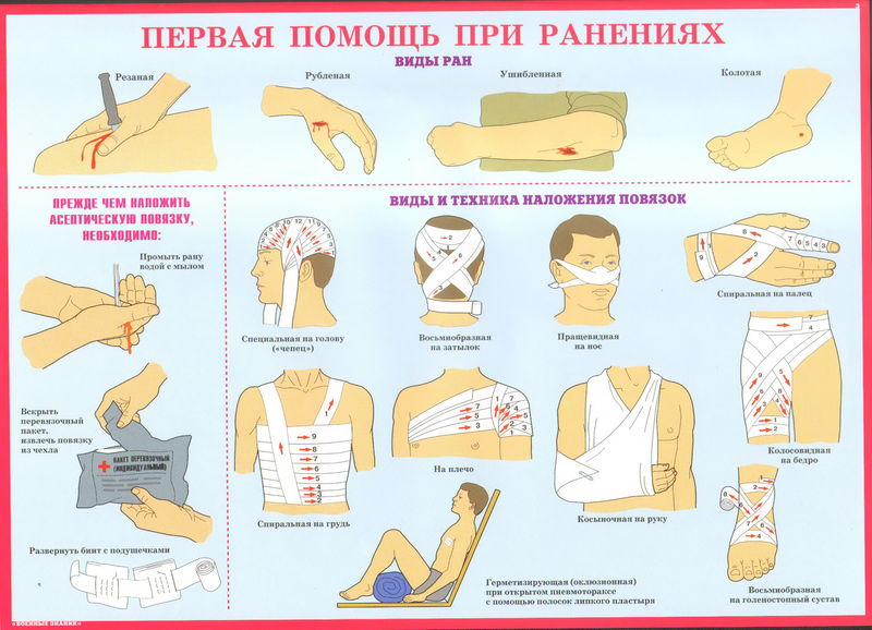 Артериальное кровотечение. признаки артериального кровотечения. правила остановки артериального кровотечения