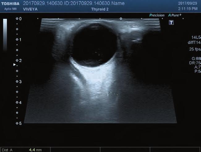Стекловидное тело