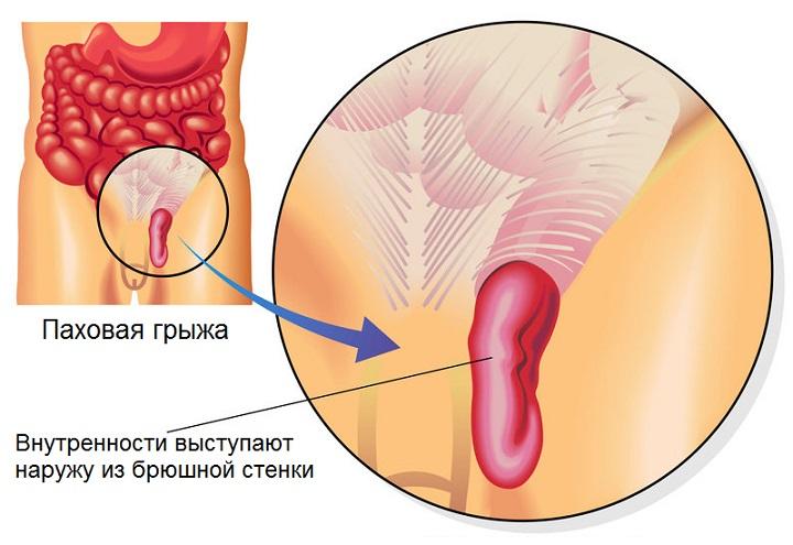 Паховая грыжа. причины, симптомы, диагностика и лечение
