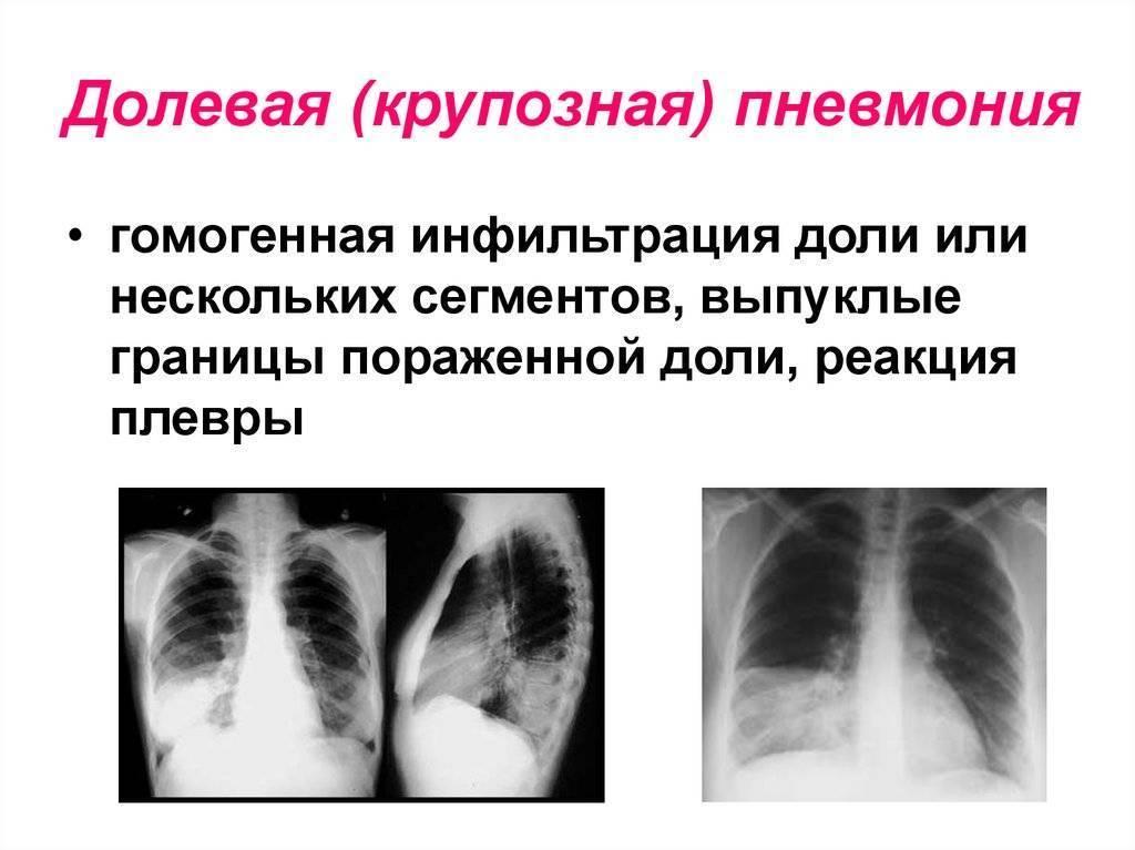 Особенности лечения и профилактика крупозной пневмонии