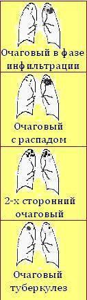 Очаговый туберкулез легких заразен или нет, а также классификация, формы и лечение очагов и уплотнений