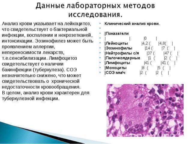 Анализ крови при туберкулезе