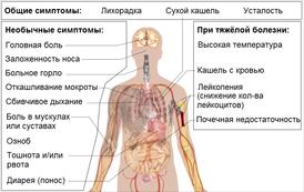 Коронавирусная инфекция: заражение, формы, течение, терапия