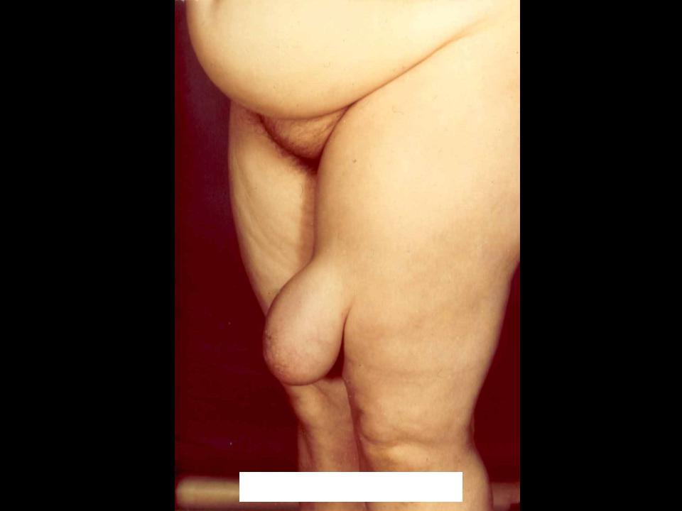 Что такое липосаркома забрюшинной полости по мкб 10 и прогноз течения заболевания