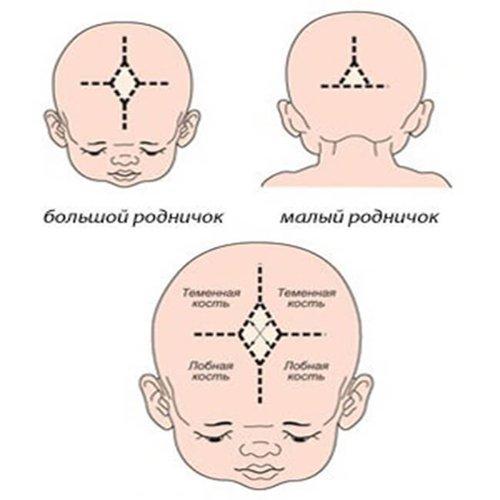 Родничок новорожденных: время закрытия и причины костных аномалий
