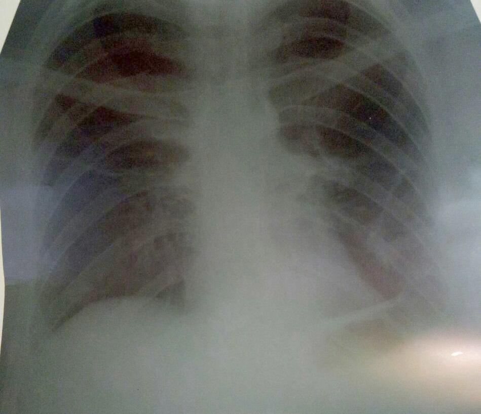 Перенесенный туберкулез