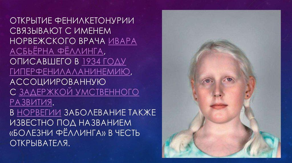 Наследственные болезни обмена аминокислот (фку, алкаптонурия, альбинизм и др.)