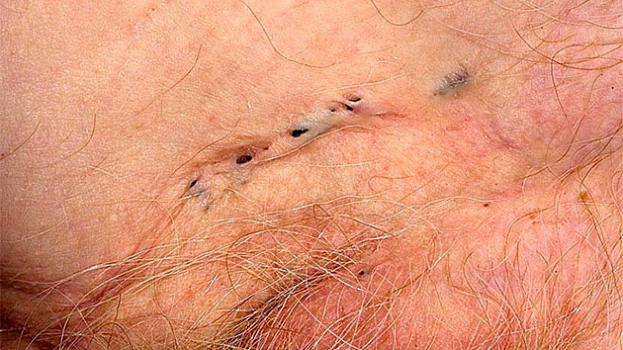 Эпидермофития – диагностика, лечение и профилактика. какими препаратами лечить паховую и эпидермофитию стоп у мужчин и женщин?