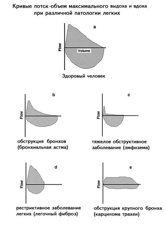 Спирометрия - что это такое и какие нормальные показатели (таблица)