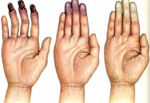 Синдром рейно – причины, симптомы, диагностика и лечение