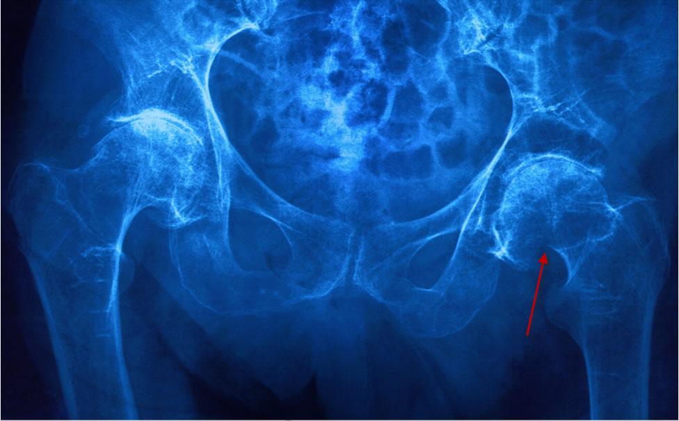 Первая помощь, лечение и последствия перелома тазобедренного сустава