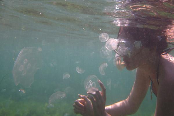 Укус медузы: симптомы, последствия, оказания первой помощи