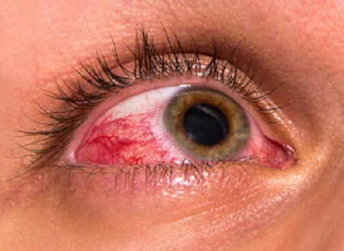 Трусопт — глазные капли улучшающие качество зрения